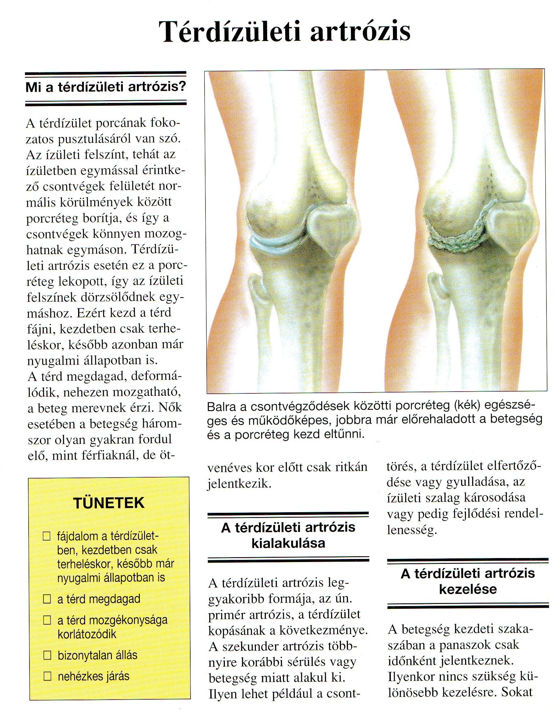 artrózis 2 fokú kezelési módszerek