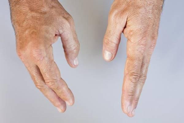 krém az osteochondrosisról a vállízület gyulladása aki gyógyul