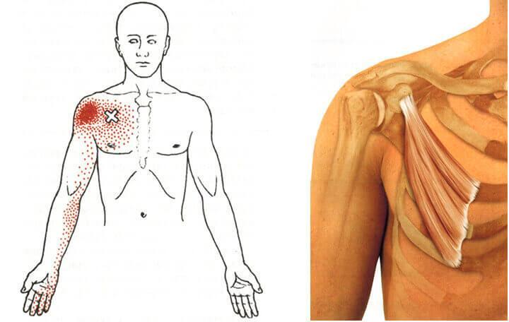 fájdalom a vállízületben nyaki patológiával)