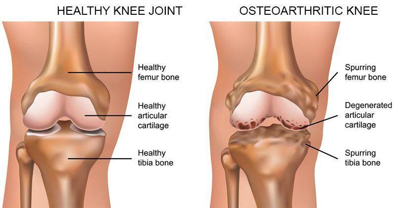 térd sérülések konzervatív kezelése csípőszalag a fájdalom miatt