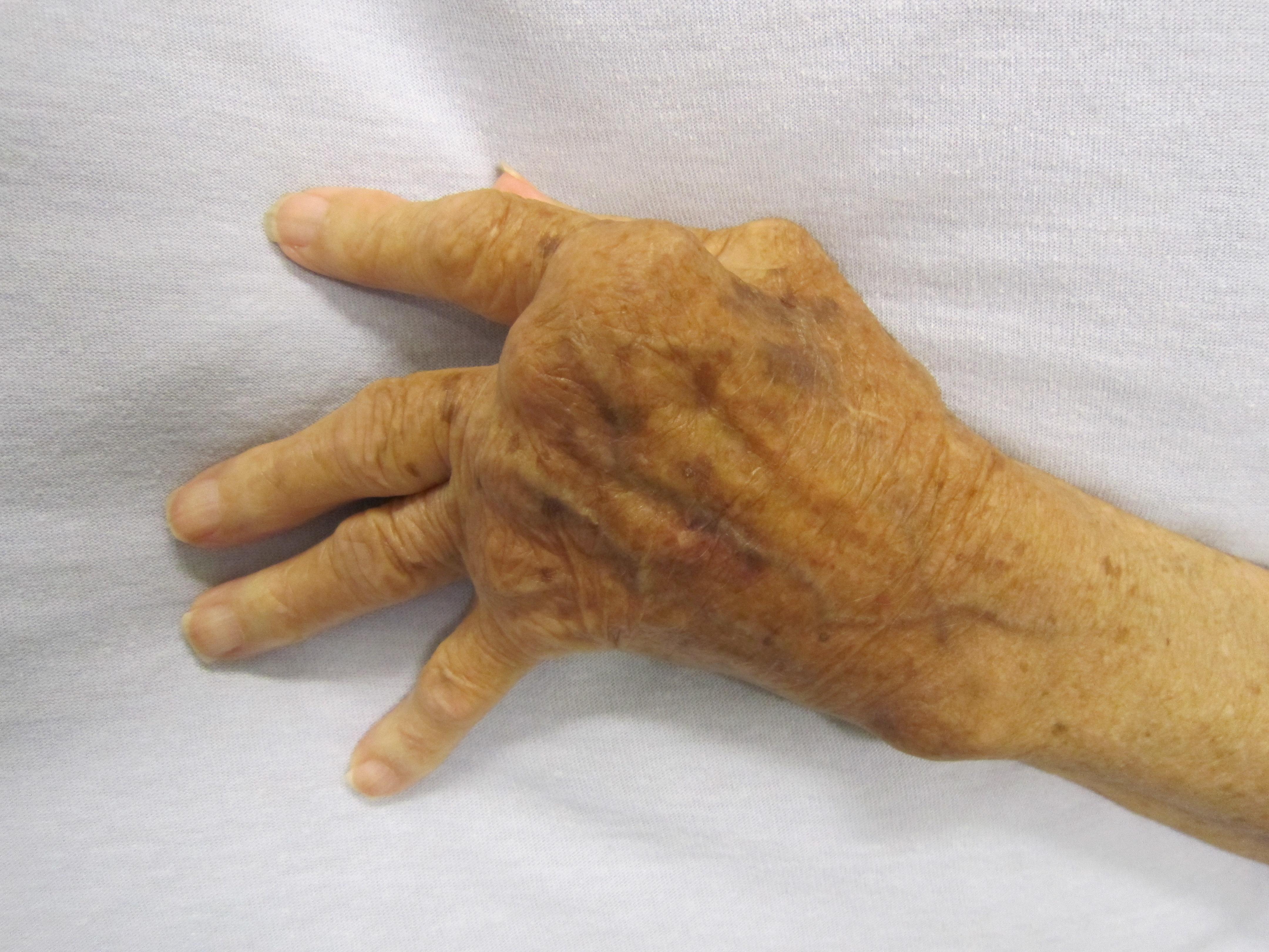 kezdődő reumatoid arthritis tünetei