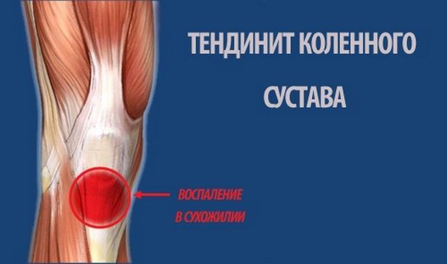 térdízületi fájdalom belülről