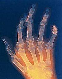ízületi gyulladás artritiszben mi a teendő, ha a vállízület sérült