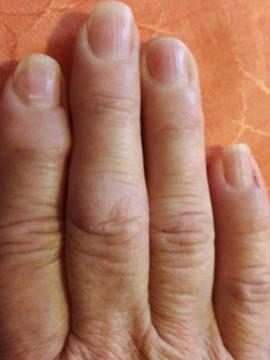 csomók az ujjain ízületi gyulladás