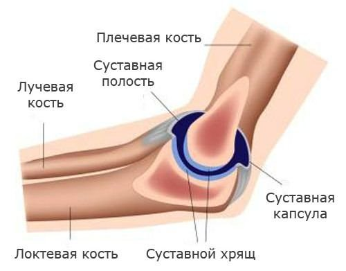 könyökízület epicondylitis, mint kezelni
