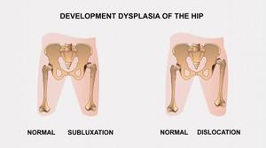 Hip diszplázia: diagnózis és kezelés - Masszázs July