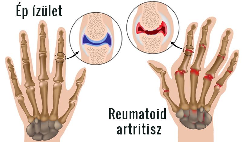 rheumatoid arthritis ízületek kivételek felnőtt csípő deformáció kezelése