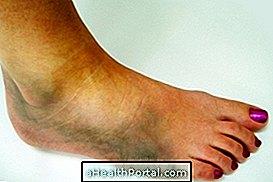 lehetséges e az artrózis az ízület helyreállítása mi a helyzet a lábízület gyulladásával