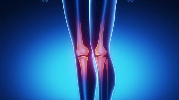 mi fáj a kezekre és ízületekre fizikai gyakorlatok a lábak ízületeinek fájdalmára