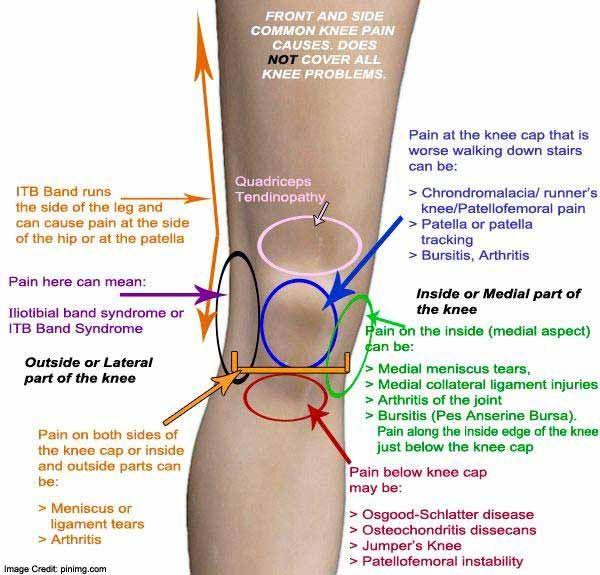 Honnan tudhatom, hogy a térdfájdalom komoly?, Térd kezelési javaslatok