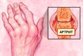 az ízületek fájnak mit kell tenni a csípőízület ízületének károsodása