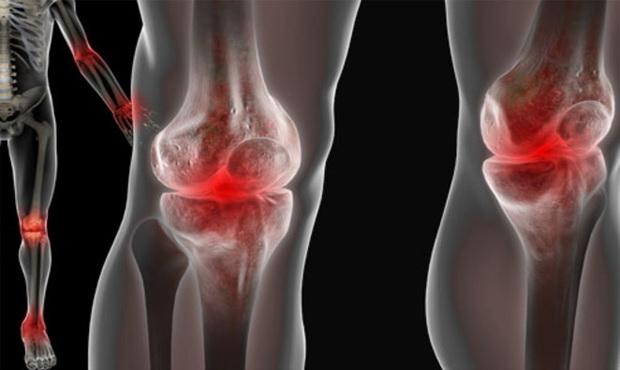 deformáló láb artrózis 2 fokos kezelés csípőízület 4. fokozatú kezelés