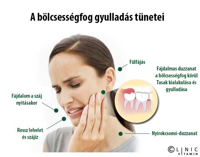 fülfájás és ízületi gyulladások