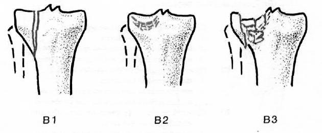 az alsó lábszárcsont artrózisának törése utáni kezelés