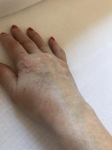 a térd bursitisének gyulladása