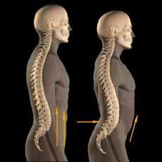 Idiopathiás juvenilis oszteoporósis (IJO) - a gyermekkori csontritkulás