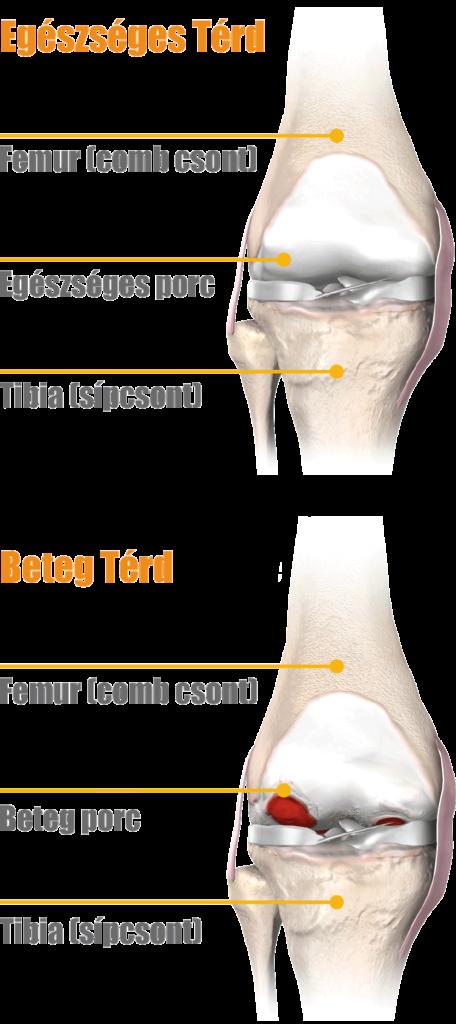 a térd artrózisának ultrahangkezelése