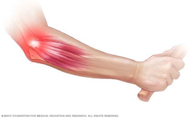 a jobb könyökízület fáj hogyan kezeljük a fájó csípőízületeket
