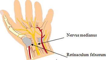 a bokaízület ízületi gyulladásának gyógyszere skarlát az artrózis kezelésében