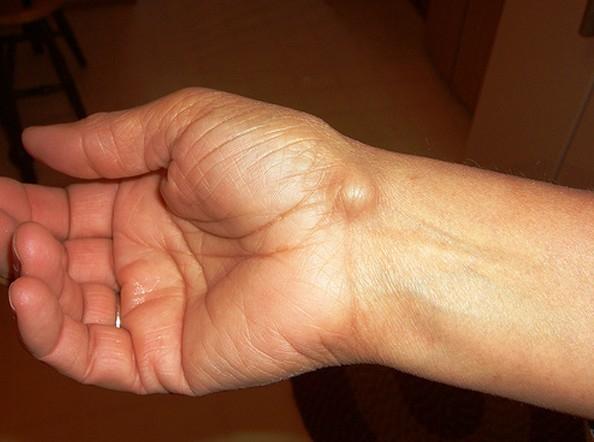 csuklóízületi kezelés