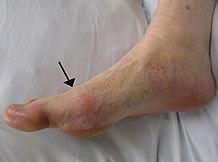 szeropozitív rheumatoid arthritis kezeléssel