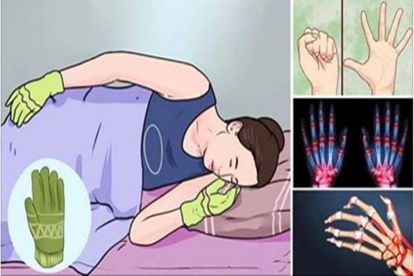 ízületi betegség sinusitis)