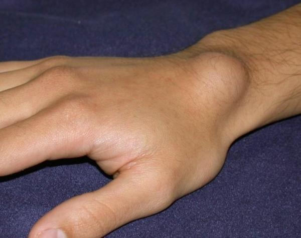 artrózis kezelése ayurvedában ízületi gyulladás teraflu