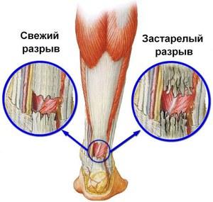 gyógyítja a térdrándulást a bal térd belső károsodása