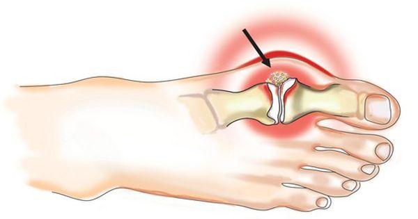 bursitis a térdízület kezelésében kondroitin és glükozamin árak
