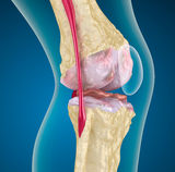 az ízületi só kezelése ízületek polyarthritis, mint kezelésére