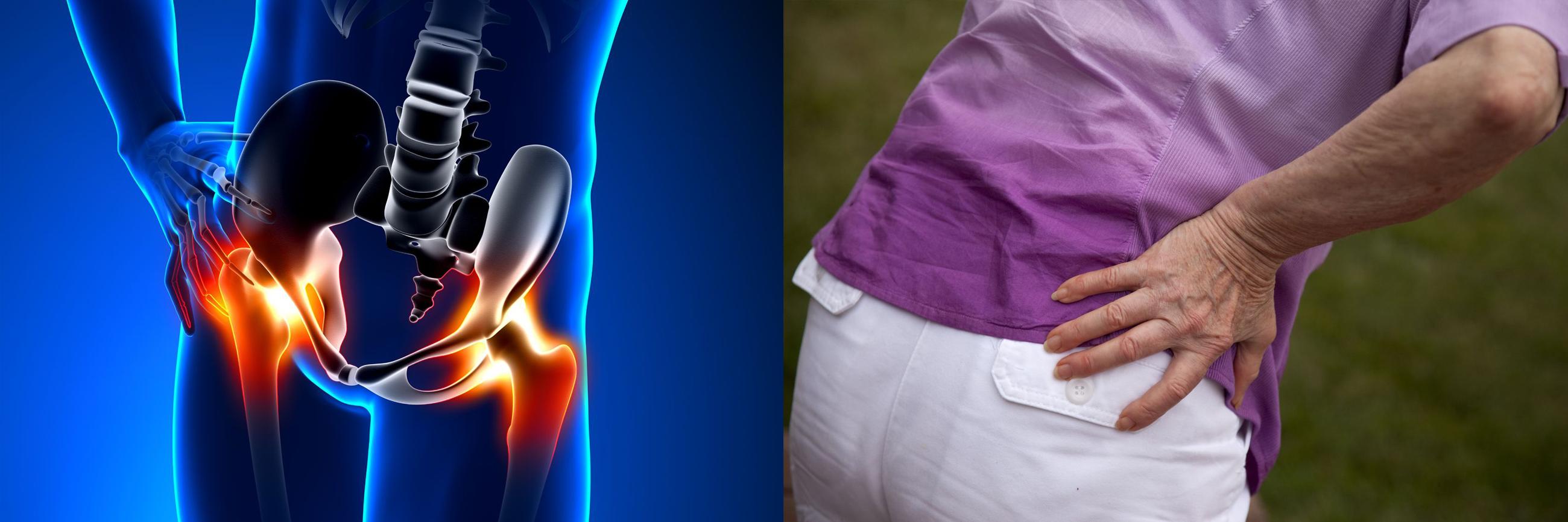 csípőízületi kezelés kezdeti stádiuma