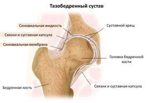 a csípőízület ízületi gyulladásának oka argo krém ízületekre