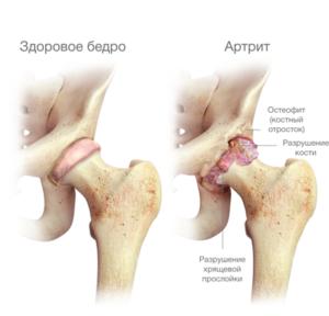 ízületi változások artrózissal