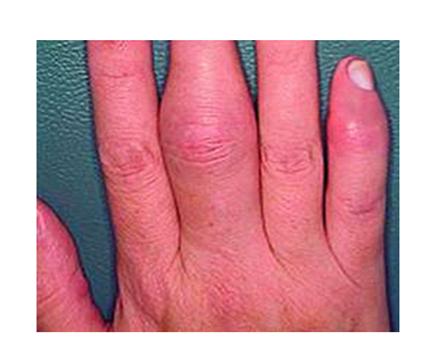 kéz izületi gyulladás