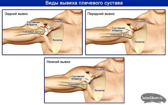 a hüvelykujj alak artrózisának kezelése a csuklóízület gyulladása
