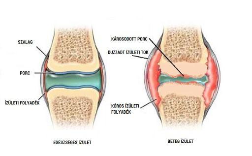 a boka ízületeinek artrózisa mágneses kezelés