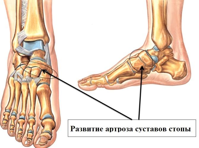a lábak nagy ízületeinek betegségei ha a kezek csontjai és ízületei fájnak