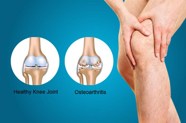 artrózis kezelés jelei kezelés csípőtörés után