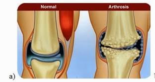 az artrózis kezelése belül