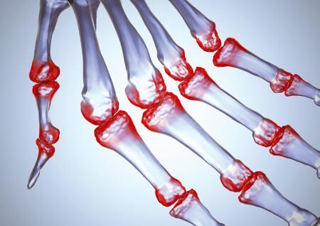 Arthritis psoriatica, szimmetrikus, RA-re emlékeztető polyarthritis-szel
