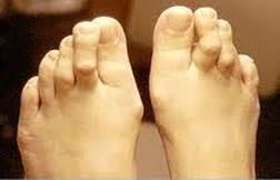 lábfej lábujjai ízületi betegségei az artrózis ajurvédikus kezelése