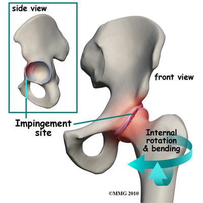 csípőízület elülső fájdalma