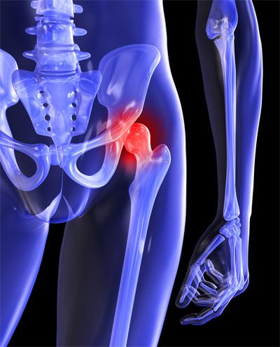 a csípőízület fájó fájdalmainak okai)