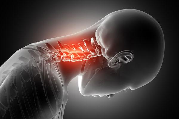 nyaki fájdalom a nyaki csontritkulás kezelése kenőcs az ízületek és a csontok fájdalmáért