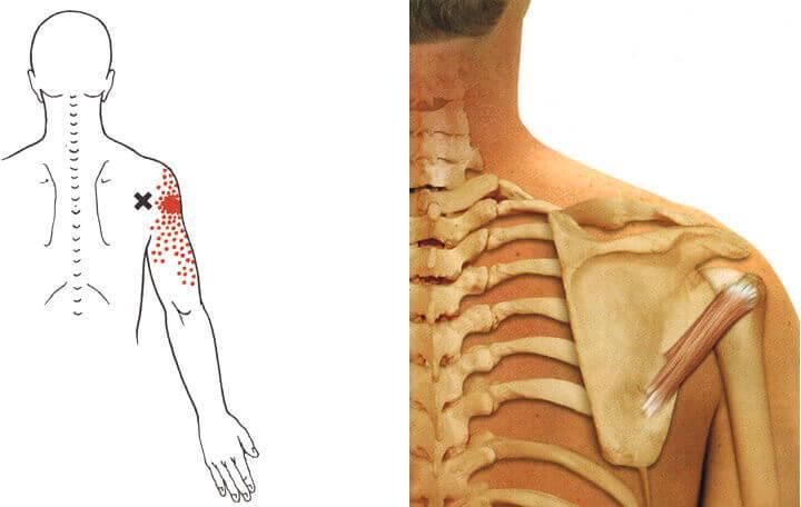 Anesztéziával összefüggő komplikációk: 11. Epidurális vagy spinális injekció okozta idegsérülés