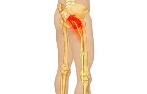 fájdalom a bal csípőízület területén