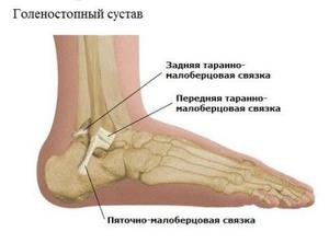 boka ligamentum károsodásának diagnosztizálása