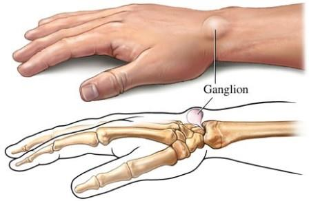 bokaízület gonarthrosis kezelése reumatikus gyulladas