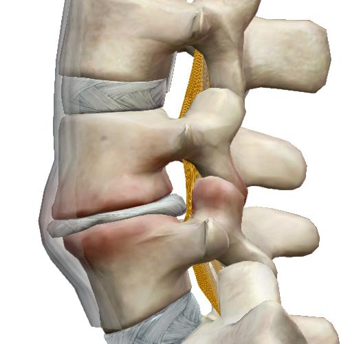 miért fáj minden ízület és gerinc