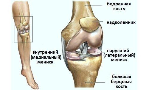 gon artrosis, hogyan kell kezelni